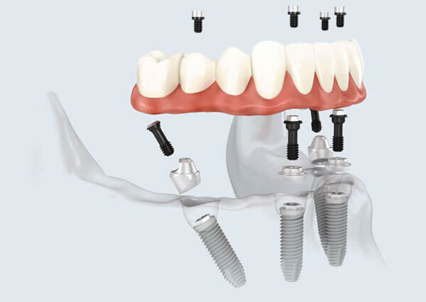 Permanent dentures Tampa